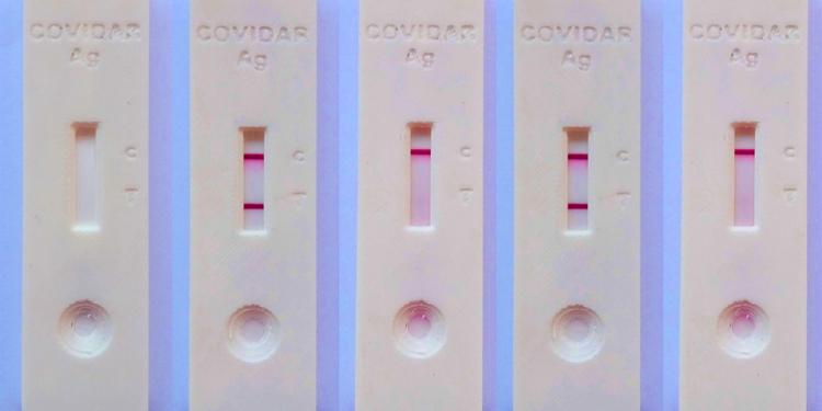avanza el desarrollo de un test de antigenos nacional para detectar coronavirus
