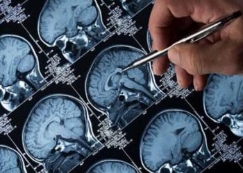 este implante cerebral podria eliminar los sintomas de la depresion